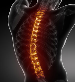 a spinal cord xray