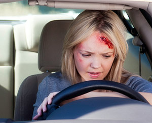 facial injury after a car accident